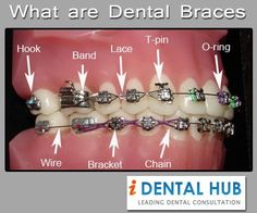 Dentists now provide customized solutions for dental concerns right from the kind of dental braces and the duration. Now we have ceramic braces which are tooth colored and are not seen in contrast to the metallic braces.