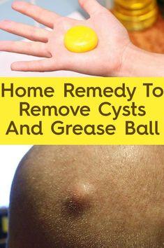 Hurt cysts breast