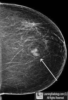 Breast within breast appearance - benign proliferation of breast tissue components (glandular and fatty) surrounded by a thin capsule of connective tissue - Breast Hamartoma/ fibroadenolipoma