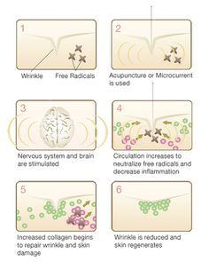 Natural Medicine Rx...: Acupuncture Facial Rejuvenation...A Natural Botox Alternative.