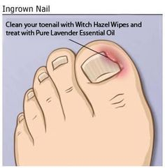 how to get rid of ingrown toenails permanently