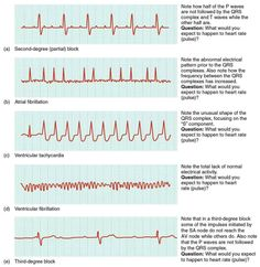 EKG. Who's naturally good at em? No one. It's learned and practiced. Study what…