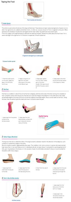 Kinesio Taping instruction for a foot pain