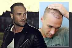 Calum Chambers Hair Transplant - Lots of Celebrities like Calum Chambers has done successful hair transplant, Hair implant cosmetic surgery. You can also get your hair back and it can become from bald to beautiful.  At Dezire Clinic we provide Hair Transplant at very low cost with 100% results. You can consult your case with our experts at Pune, Delhi, Gurgaon, Bangalore and Channai. Call us on +91 9222122122