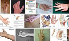 Ulnar Nerve Lesion http://www.medikova.com/disease-ulnar-nerve-lesion