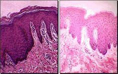 stratified squamous epithelium keratinized