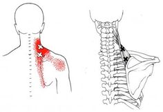 Levator Scapulae | The Trigger Point & Referred Pain Guide