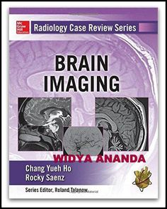 Radiology Case Review Series: Brain Imaging 1st Edition by Chang Ho (Author), Rocky Saenz (Author) Product Details Series: Radiology Case Review Paperback: 496 pages Publisher: McGraw-Hill Education / Medical; 1 edition (August 11, 2015) Language: English ISBN-10: ISBN-13: 978- Product Dimensions: 1 x 8.5 x 10.8 inches Shipping Weight: 12.6 ounces 200 interactive brain imaging cases deliver the best board review possible! Part of McGraw-Hills Radiology Case Review Series, this ...
