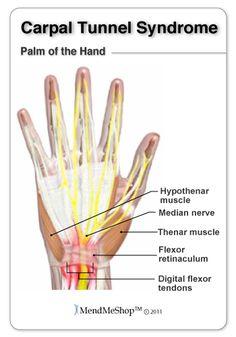 Carpal Tunnel Syndrome (CTS) is caused by inflammation in surrounding wrist tissue (flexor tendons) that becomes swollen and squeezes the me...