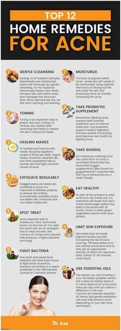 Overnight Pimple Home Remedies - Speedy Methods for Banishing Acne. How To Prevent Pimples Naturally At Home |  Acne Breakout Chart Face Mapping  | How To Preve.... How To Prevent Pimples On Face Forever |  Acne Breakout Treatment  | Acne Free Diet Plan 30 Days Clearer Skin. #jerawat #Acne Tips. You can find more details by visiting the image link.