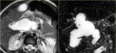 The Radiology Assistant : Biliary duct pathology Caroli Disease, Medullary Sponge Kidney, Portal Hypertension, Bile Duct, Ulcerative Colitis, Type I, Radiology, Ultrasound