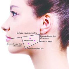 Face Fillers, Botox Fillers, Dermal Fillers, Botox Face, Botox Lips, Botox Injection Sites, Botox Injections, Facial Muscles Anatomy, Botox Quotes