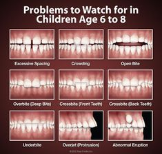 Problems to Watch for in Children Age 6-8. If any of these problems are present, it may be time to schedule an orthodontic evaluation. We may be able to make orthodontic treatment later shorter and less complicated with early evaluation. Posted by Togrye Orthodontics. www.bracesdoc.com
