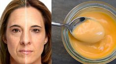 Botox Effect Face Mask: You Will See The Difference In Half Hour -.- Botoks Etkili Yüz Maskesi: Yarım Saatte Farkı Göreceksiniz – Botox Effect Face Mask: You Will See The Difference In Half Hour – You will see # the - Hair Care Oil, Diy Hair Care, Natural Hair Conditioner, Most Delicious Recipe, Delicious Food, Food T, Hair Rinse, Prevent Hair Loss, Album Design