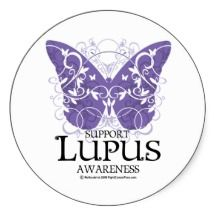 Currently there is no cure for lupus; the goal of treatment is to control symptoms, prevent flares and complications.
