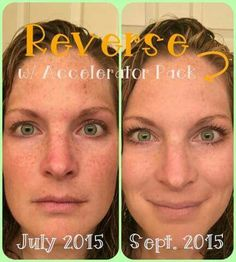"""SUPER LOVE this story by fellow consultant, Leslie Goldhardt -- Stepping wayyyy out of my comfort zone, my palms are sweating as I type this, but here I go - bear with me... Never in a million years did I think I would be selling skincare products or sharing these pictures with all of you! I don't even like to have my picture taken and now I'm posting these super vulnerible close-ups!!! Here's why... I've always been that freckle-faced girl. People always say, """"You should love your…"""