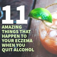 Find out what happens to your eczema when you quit alcohol...  http://topeczematreatments.com/eczema-alcohol/  #Eczema