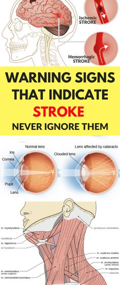 WARNING SIGNS THAT INDICATE STROKE – NEVER IGNORE THEM