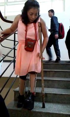 Longchamp, Fashion Backpack, Backpacks, Braces, Backpack, Suspenders, Backpacker, Backpacking, Dental Braces