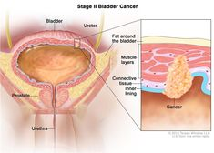 Bladder Cancer Treatment (PDQ®)—Patient Version - National Cancer Institute