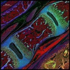 Mouse vertebra section Michael Paul Nelson and Samantha Smith, University of Alabama at Birmingham, Department of Pathology/Neuropathology, Birmingham, Alabama, USA