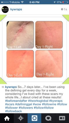 The picture says it all. These are my scars. Contact me now if you want results like this $45 loyal customer price: laurenmontelli92myitworks.com or wrapsky@gmail.com