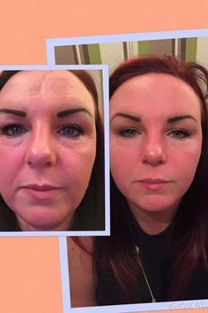 Amazing results from the face lift activator