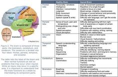 This is a great study guide for a test on brain function. This is from a brain and spine injury treatment website. A comprehensive list of brain lobes with their functions and how injury might look. Speech Pathology, Speech Language Pathology, Speech And Language, Speech Therapy, Aphasia Therapy, Cognitive Therapy, Occupational Therapy, Brain Anatomy, Anatomy And Physiology
