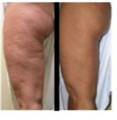 Inspire your patients to... love their thighs with the EndyMed PRO!
