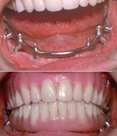 """Denture cleansers are creams, pastes, gels and solutions that are made to clean both full dentures and removable partial dentures (often called """"partials"""")."""