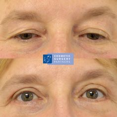 Blepharoplasty (Eyelid Surgery) at our London clinic - Please call 020 7486 6778 or visit our website for further information #eyelidsurgery #uppereyelidsurgery #blepharoplastyLondon #eyelidsurgeryLondon #uppereyelidsurgeryLondon #blepharoplastysurgeon #eyelidsurgeon #uppereyelidsurgeon #lowereyelidsurgeon #blepharoplastyresults #eyelidsurgeryresults #uppereyelidsurgeryresults #blepharoplastybeforeandafterphotos #eyelidsurgerybeforeandafterphotos #blepharoplastypatient #eyelidsurgerypatient Facial Cosmetic Surgery, Muscles Of The Neck, Neck Lift, Eyelid Surgery, Double Chin, Jawline, Clinic, Cosmetics, London
