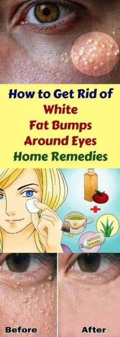 Home Remedies to Get Rid of White Fat Bumps Around Eyes Naturally The small white bumps on your skin which usually appear around your nose, cheeks or eyes are called milia. They're also known as milk spots and are quite common in babies. They happen as a Skin Care Treatments, Natural Treatments, Home Remedies, Natural Remedies, Beauty Skin, Health And Beauty, Beauty Care, Beauty Hacks For Teens, Natural Health Tips