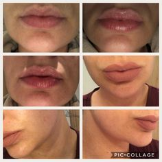 Before lip plump applied top left picture. All the rest with lip plump applied and with lip colour on top in bottom 3 pictures. Lip Colour, Color, Lip Plumper, Good Skin, Rest, How To Apply, Lips, Good Things, Amazing