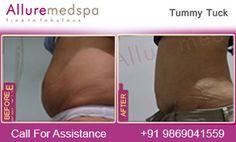 Alluremedspa is Leading Tummy Tuck Center Offering Tummy Tuck/ Lipo Abdominoplas. Mini Tummy Tuck, Tummy Tuck Cost, Tummy Tucks, Body Surgery, Tummy Tuck Surgery, Eyelid Surgery, Tummy Tuck Before After, Surgeon Doctor, Surgery Center