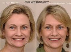 http://www.faceliftdentistry.com  The non-invasive Porcelain Veneers let you get your smile back without any intrusions.  Face Lift Dentistry has all the latest procedures in place to serve their patients with ease. #noninvasivePorcelainVeneers
