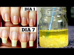 Beauty Discover How To Grow Long Nails Faster In Just 7 Days Working Treatment) By Simple Beauty Secrets - Healthy Nails Nail Growth Faster Nail Growth Tips Grow Nails Faster Grow Long Nails How To Grow Nails Diy Nails Manicure Diy Long Nails Fast Nail Grow Long Nails, Grow Nails Faster, How To Grow Nails, Nail Growth Tips, Diy Nails, Manicure, Fast Nail, Strong Nails, Healthy Nails