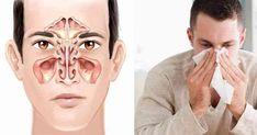 """Infekcje zatokowe są jednymi z najczęstszych dolegliwości dnia dzisiejszego.Średnio ponad miliard dolarów wydawane jest rocznie na leki bez recepty stosowane w leczeniu zapalenia zatok.        """"Choroba zatokowa odpowiada za 16 milionów wizyt u lekarza i 150 milionów Halloween Face Makeup, Health Fitness, Yoga Pants, Stencil, Advice, Jesus Pictures, Natural Medicine, Vitamin E, Remedies"""