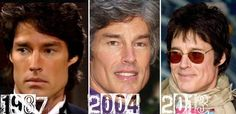 Ronn Moss Plastic Surgery Before & After