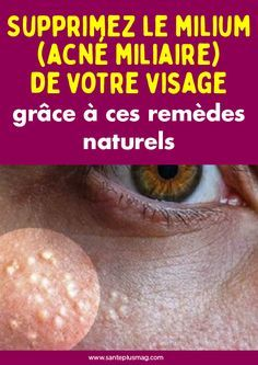 Beauty Discover Retirez le milia (whitehead) de votre attitude pour ces remèdes naturels Retirez le milia (whitehead) de votre at. Weight Loss Transformation Meal Planning Health Tips Lose Weight Health Fitness Facial Hair Beauty How To Plan Healthy Beauty Hacks Skincare, Beauty Tips For Skin, Hair Beauty, Beauty Tricks, Teeth Whiting At Home, Wellness, Natural Health, Health Tips, Health Fitness