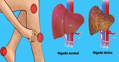 Nuestros hígados son uno de los órganos con el trabajo más duro de nuestros cuerpos. Por suerte para nosotros, vuelca todas las toxinas a través de nuestros movimientos intestinales, y lo hace de una manera segura y saludable. Pero cuando el hígado comienza a ser cubierto con tejido graso debido a nuestras dietas pobres, comienza a funcionar mal peligrosamente. Esto significa que todas las toxinas a las que nuestro cuerpo no puede hacer frente no están siendo reguladas y eliminadas como lo…