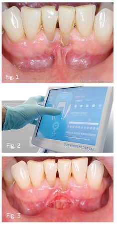 Show Your Work: Mandibular Frenectomies Made Simple by Dr. Timothy Anderson Home > Dentaltown Magazine > February 2018 > Article Laser Dentistry, You Working, Make It Simple, Dental, February, Magazine, Magazines, Dentist Clinic