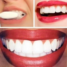 Dr Oz: Teeth Whitening Home Remedy: Baking Soda + Lemon Juice
