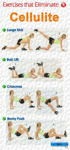 Cellulite Elimination #Exercise on Dietsgrid.com