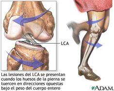 Es una ruptura o estiramiento excesivos del ligamento cruzado anterior (LCA) en la rodilla. La ruptura puede ser parcial o completa. una d...