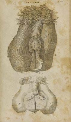 """I got this from a medical manual dated Boston, 1795.  """"The parts of a hermaphrodite... which was neither sex perfect, but a *wonderful mixture* of both."""""""