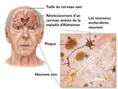 5 conseils pour prévenir la maladie d'Alzheimer