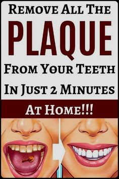 Naturally Whiten Teeth: 10 Ways To Remove Tartar Stains From Your Teeth Foods For Brain Health, Oral Health, Health Tips, Health Care, Improve Mental Health, Health Benefits, Varicose Vein Removal, Varicose Veins, Natural Health Remedies