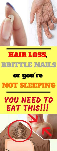EAT THIS IF YOU HAVE HAIR LOSS, BRITTLE NAILS OR YOU'RE NOT SLEEPING! #hair #nails #sleeping