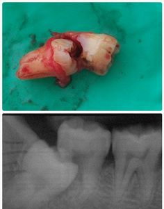 This is what can happen when a 3rd molar 'wisdom tooth' is left in too long. It tried to erupt up and through a perfectly good second molar tooth in front of it, which dissolved the back half of the tooth, so now they both had to come out.