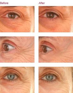 Simple eye exercises and natural homemade treatments can prevent and eliminate under eye wrinkles permanently etreatments